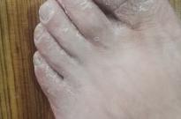 厦门制霉菌素适用于手足癣的治疗吗?