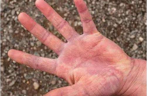 灰指甲,灰指甲公司,灰指甲加盟6.png